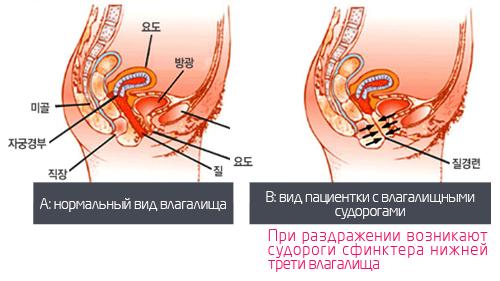 Как сделать мышцы влагалища уже